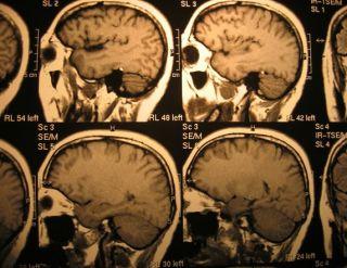 Op de CT-scans zijn de impacts te zien